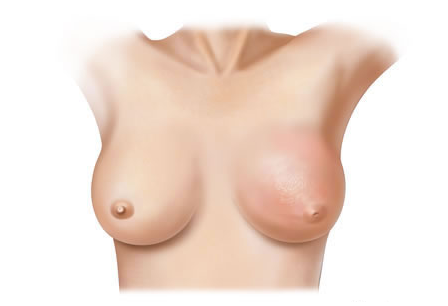 treatment of inflammatory breast cancer