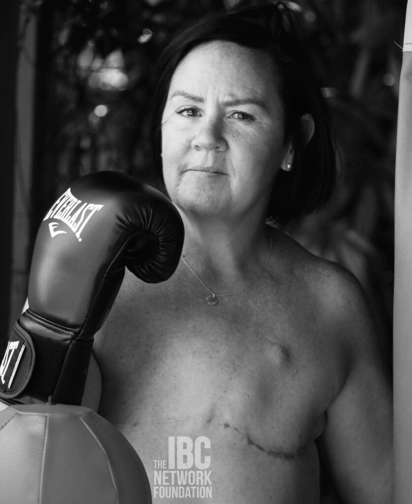 scars of strength - tracey's story